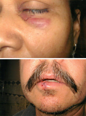 Photos from April 21, 2011 show the injuries Alfonso and Patricia Cavada suffered in their encounter with a dozen Chicago police officers.